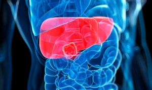 Taking a fucoidan supplement can help to reverse liver damage.